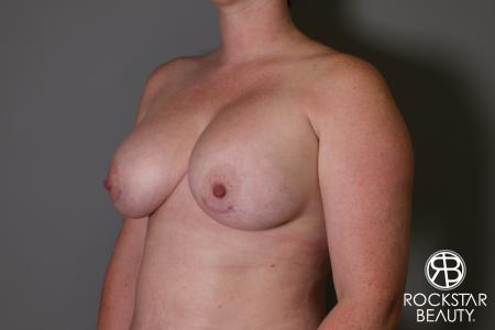 Breast Augmentation: Patient 11 - After Image 4