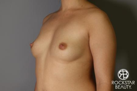 Breast Augmentation: Patient 16 - Before Image 2