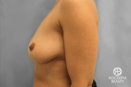 Combo Procedures - Breast: Patient 1 - Before and After Image 5
