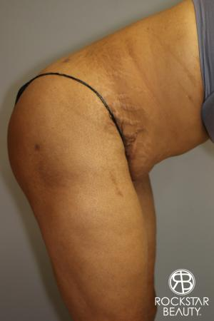 Tummy Tuck: Patient 3 - After Image 4