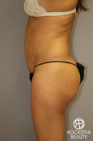 Liposuction: Patient 3 - Before and After Image 5