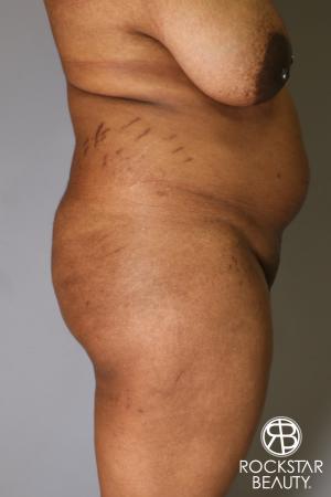 Brazilian Butt Lift: Patient 13 - Before Image 2