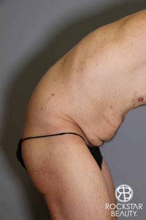 Tummy Tuck: Patient 11 - Before Image 3