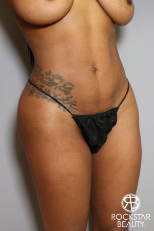 Brazilian Butt Lift: Patient 10 - After Image 4