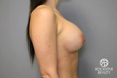 Breast Implant Exchange: Patient 4 - After Image 3