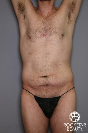 Tummy Tuck: Patient 11 - Before Image 1