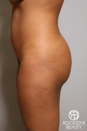 Brazilian Butt Lift: Patient 10 - Before Image 2