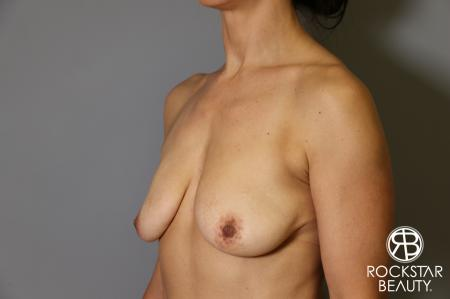 Breast Augmentation: Patient 12 - Before Image 3