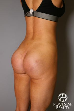 Butt Augmentation: Patient 3 - After Image 4