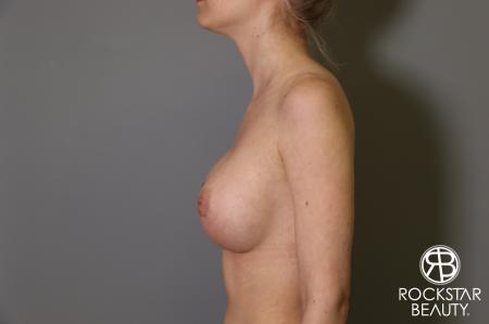 Breast Augmentation: Patient 2 - After Image 5