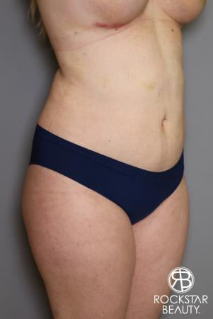 Liposuction: Patient 11 - After Image 2