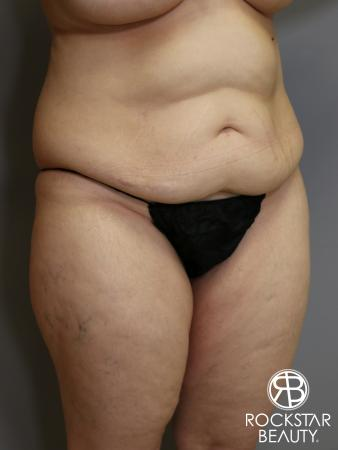 Tummy Tuck: Patient 4 - Before Image 2