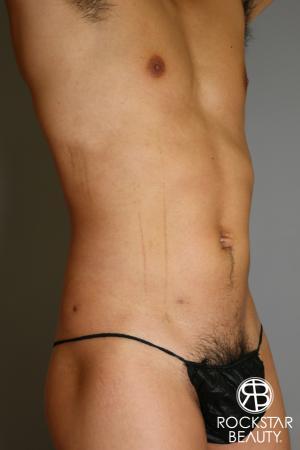 Liposuction: Patient 17 - After Image 3