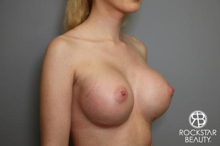 Breast Augmentation: Patient 1 - After Image 2