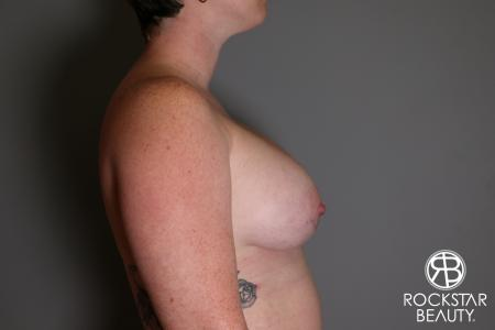 Breast Augmentation: Patient 11 - After Image 3