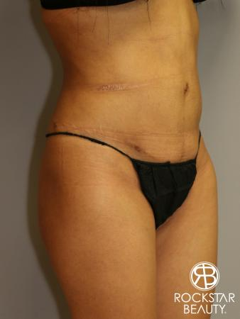 Liposuction: Patient 3 - After Image 2
