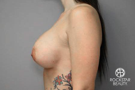 Breast Implant Exchange: Patient 4 - After Image 5