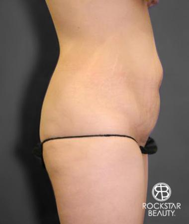 Tummy Tuck: Patient 10 - Before Image 3
