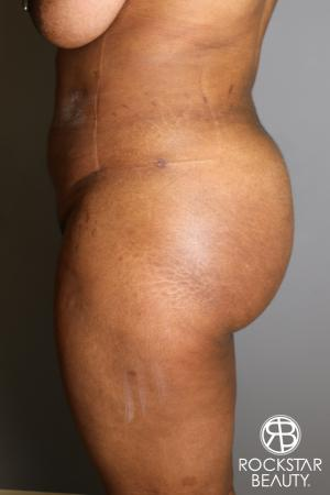 Brazilian Butt Lift: Patient 13 - After Image 3