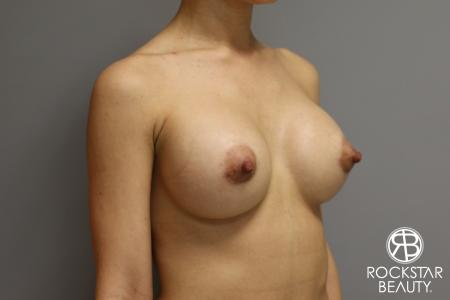 Breast Augmentation: Patient 17 - After Image 4