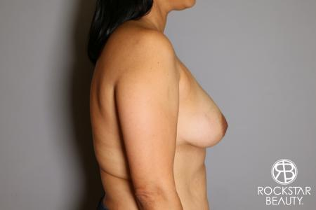 Breast Augmentation: Patient 13 - Before Image 4