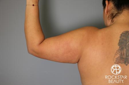 Liposuction: Patient 12 - Before Image 3