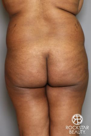 Brazilian Butt Lift: Patient 13 - Before Image 1