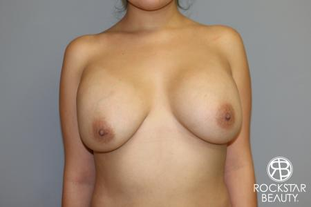 Breast Lift And Augmentation: Patient 1 - Before and After Image 3