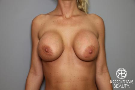 Breast Implant Revised: Patient 1 - Before Image 1
