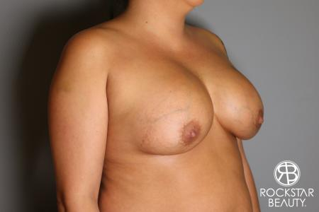 Breast Implant Exchange: Patient 1 - Before Image 3
