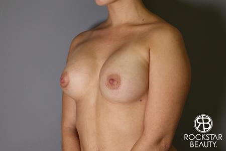 Breast Augmentation: Patient 16 - After Image 2