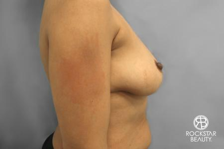 Combo Procedures - Breast: Patient 1 - Before Image 2