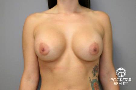 Breast Implant Exchange: Patient 4 - After Image 1