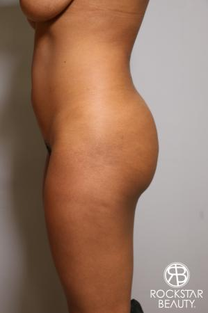 Liposuction: Patient 18 - Before Image 4