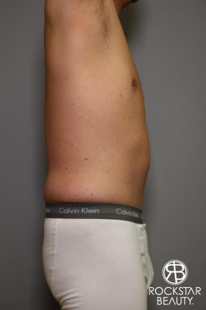 Tummy Tuck: Patient 5 - After Image 4