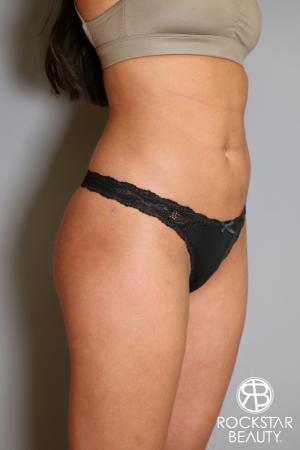 Brazilian Butt Lift: Patient 5 - After Image 5