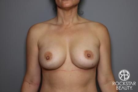 Breast Implant Exchange: Patient 6 - Before Image