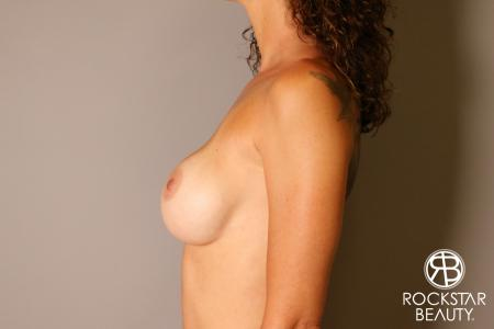 Breast Implant Exchange: Patient 7 - Before Image 4