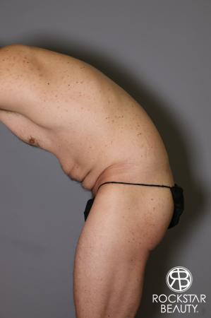 Tummy Tuck: Patient 11 - Before and After Image 5