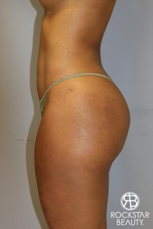 Brazilian Butt Lift: Patient 8 - After Image 3
