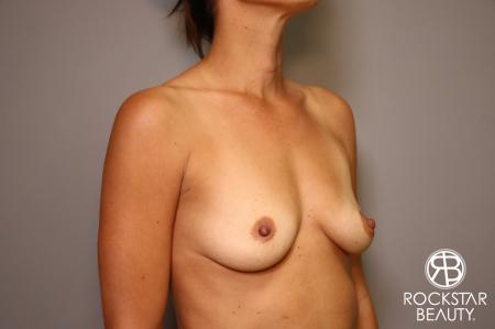 Breast Augmentation: Patient 3 - Before Image 2