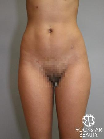 Liposuction: Patient 6 - After Image 2