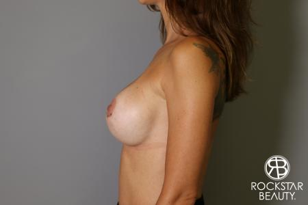 Breast Implant Exchange: Patient 7 - After Image 4