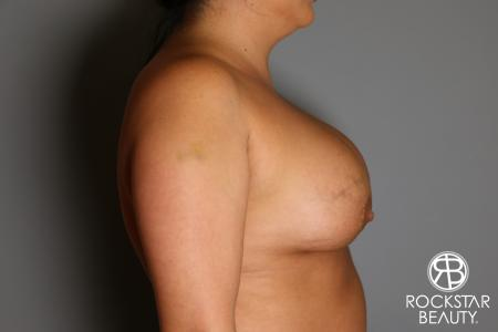 Breast Implant Exchange: Patient 1 - Before and After Image 5