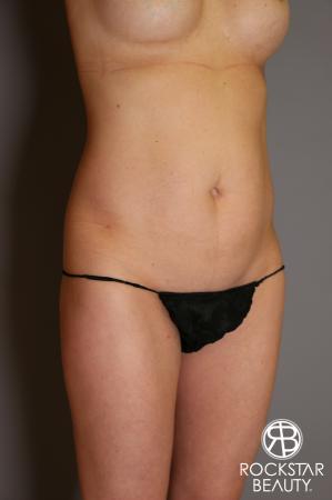 Liposuction: Patient 13 - Before Image 2