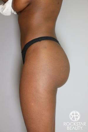 Butt Augmentation: Patient 2 - Before and After Image 4