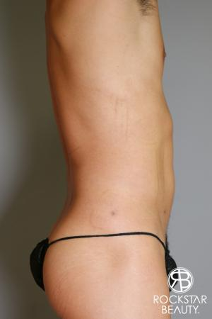 Liposuction: Patient 17 - After Image 1