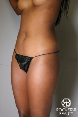 Liposuction: Patient 19 - Before Image 2