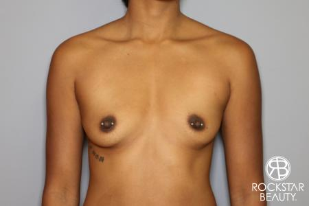 Breast Augmentation: Patient 14 - Before Image 1