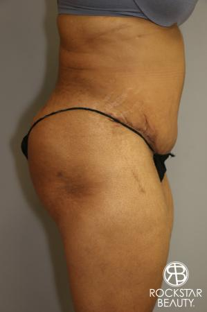 Tummy Tuck: Patient 3 - After Image 3
